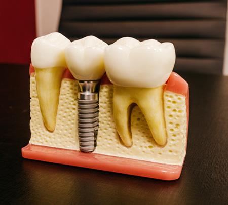 Oralchirurgie & Implantologie